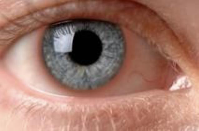 [香港眼科醫生] 葡萄膜炎和其他炎性疾病